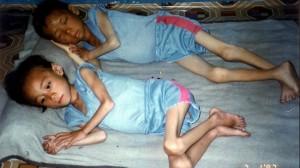 404410-north-korea-famine